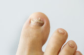What Are the Causes of Ingrown Toenails?