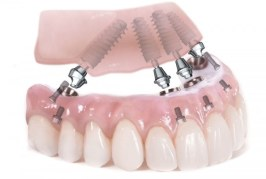 The Questions You Must Ask Your Dentist about the Dental Implants