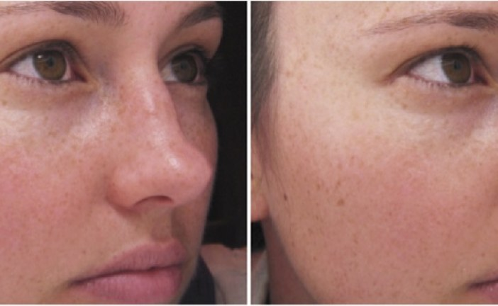 Attaining the most well shaped nose through filler and nose correction in Dubai