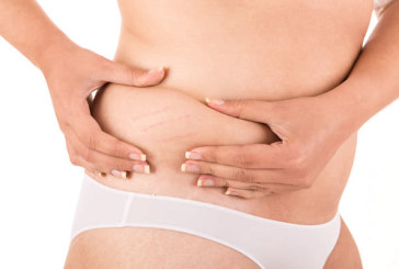 What is Coeliac Disease and what are the Options?