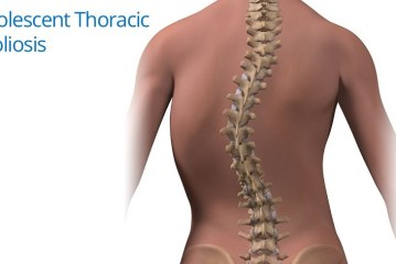 SCOLIOSIS: MEANING AND TREATMENT