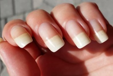 Ways to Make Your Nails Look Healthy