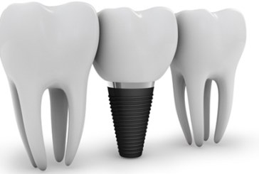 Cost of Dental Implants – What you need to know?